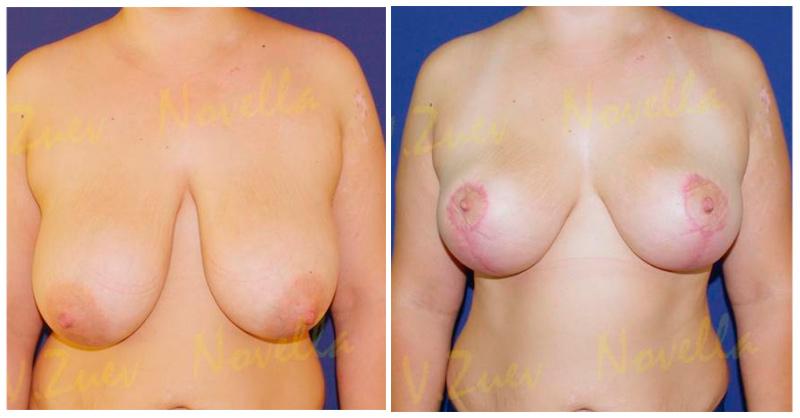 Размер имплантов для третьего размера груди